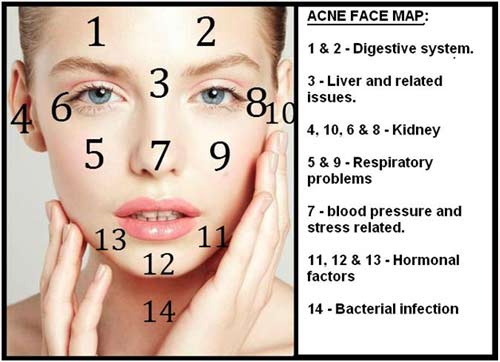 Where Your Acne Is And What It Looks Like Can Tell You Whats Causing It - Chinese face map for acne