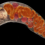 You Almost Certainly Have Parasites and Most Doctors Do NOT Know How to Treat Them
