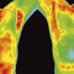 New research has revealed how dangerous mammograms are. Use This Method Instead