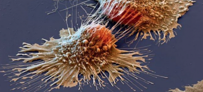 A Groundbreaking Program to Reverse and Prevent Cancer